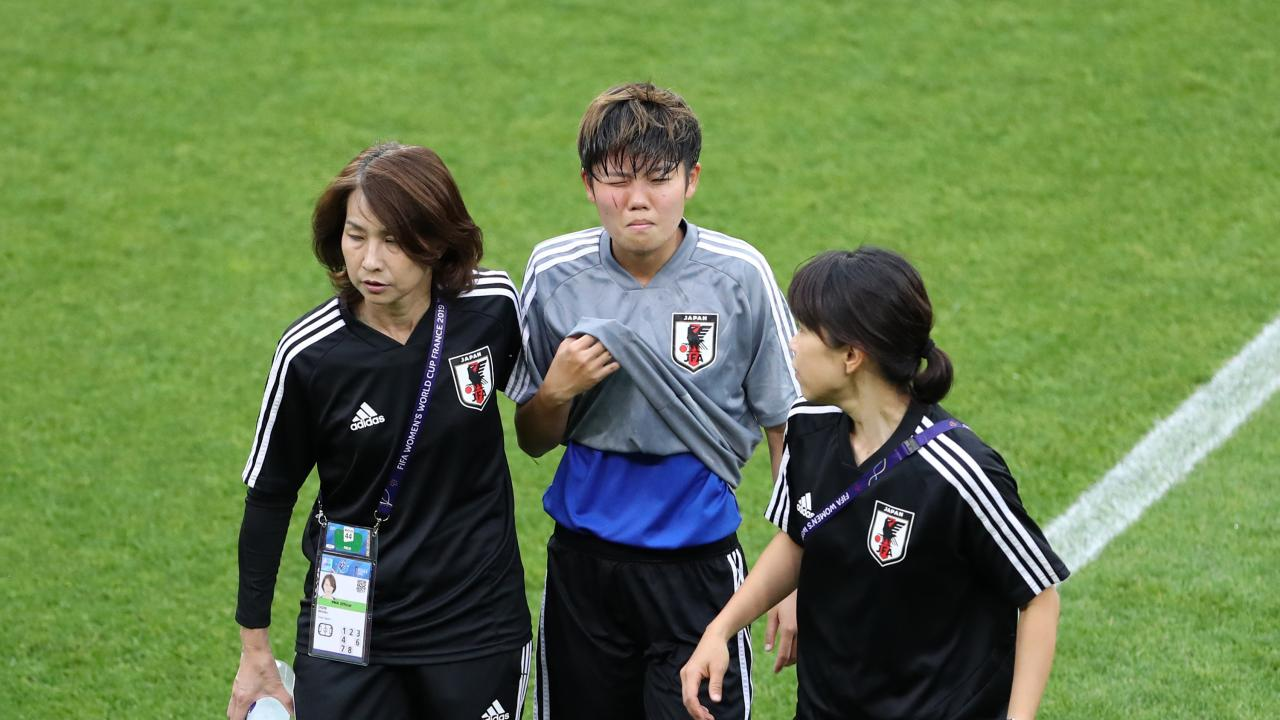 Japanese player hit in face by ball