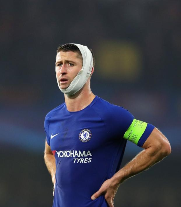 Gary Cahill Head Wrap Champions League
