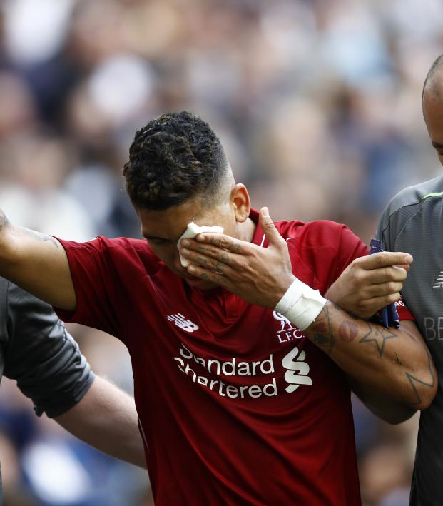 Roberto Firmino Eye Injury