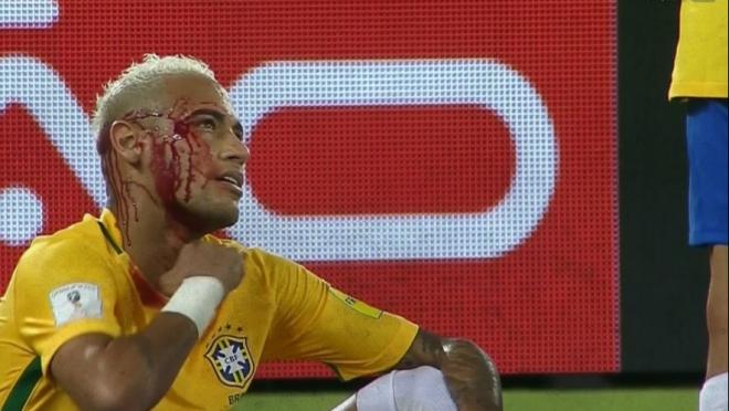 Neymar bloody