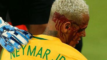 Neymar Left Bloodied After Taking Bolivia To The Cleaners One Too Many Times