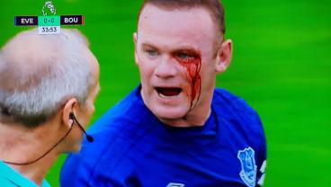 Wayne Rooney Caught An Elbow And Now He Looks Like An Anime Villain